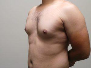 Есть ли молочные железы у мужчин