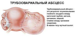 Абсцесс яичника
