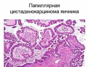 Цистаденокарцинома муцинозная яичника прогноз