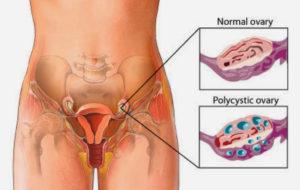 Маленькие яичники у женщины причины