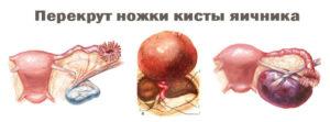 Яичника киста на ножке