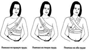 Повязка на обе молочные железы