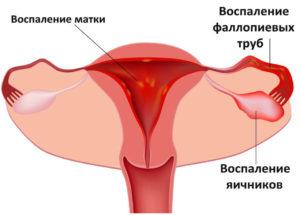 Симптомы воспаления придатков и яичников у женщин