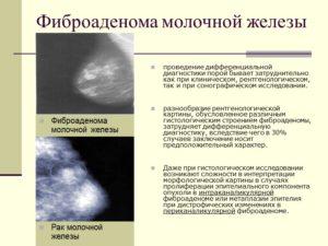 Доброкачественная опухоль молочной железы лечение