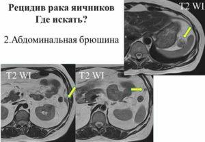 Рецидивы рака яичников