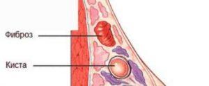 Болит молочная железа при надавливании сбоку
