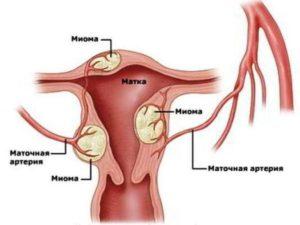 Чистотел при миоме матки как принимать