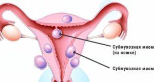 Субмукозная миома матки лечение