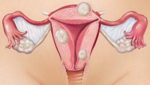 Фитотерапия при миоме матки