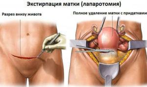 Удаление матки без яичников последствия