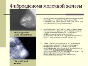 Фиброаденома молочной железы чем опасна