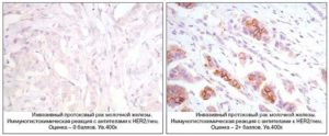 Игх исследование расшифровка молочной железы