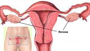 Почему болят яичники во время беременности