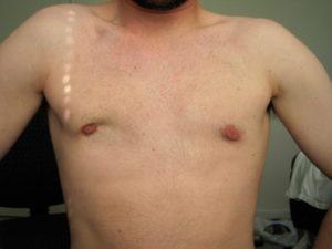 Удаление молочных желез у мужчин