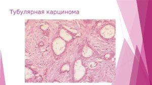 Папиллярный рак молочной железы