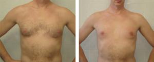 Циркулярная подтяжка молочных желез до и после