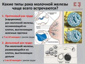 Рак молочной железы разновидности и признаки