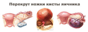 Рак яичника кисты симптомы
