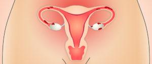 Климакс и эндометриоз