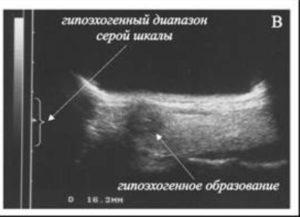 Анэхогенное образование что это в молочной железе