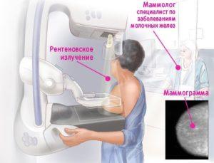 Опрелости у пожилых женщин под молочными железами лечение