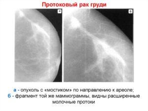 Протоковая карцинома молочной железы прогноз