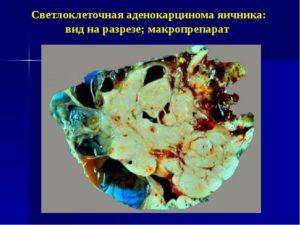 Серозная карцинома яичника
