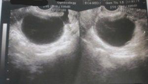 Анэхогенное аваскулярное образование в яичнике что это такое