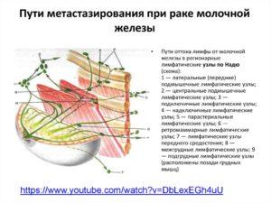 Пути метастазирования рака молочной железы