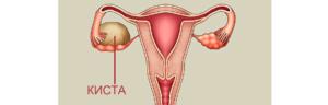 Как лечить кисту яичника без операции медикаментозно