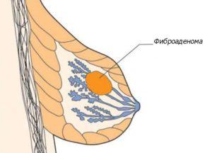 Фиброаденома молочной железы у мужчин