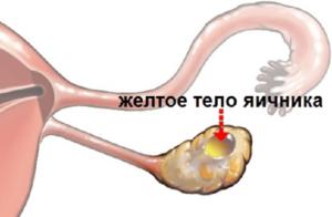 Два желтых тела в разных яичниках
