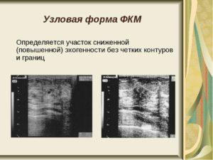 Пониженная эхогенность молочной железы