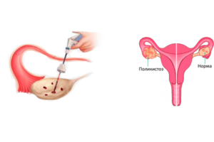 Техника диатермокаутеризация яичника