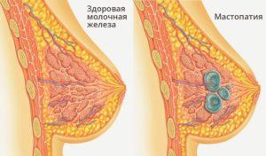 Киста молочной железы что