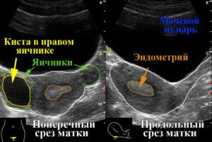 Как называется узи яичников и матки