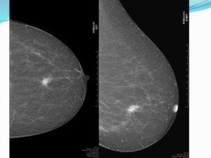 Диафаноскопия молочной железы