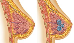 Воспаление молочной железы у женщин после 50 лет лечение