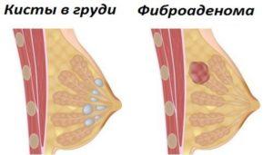 Покалывание в молочной железе