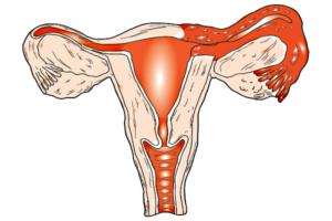 Двухстороннее воспаление яичников