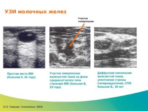 Очаговая железистая гиперплазия молочной железы что это такое