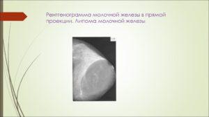 Фибролипома молочной железы