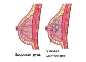Небольшое уплотнение в молочной железе