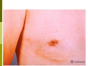 Карцинома ин ситу молочной железы