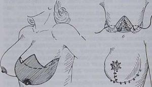 Операция по удалению фиброаденомы молочной железы послеоперационный период