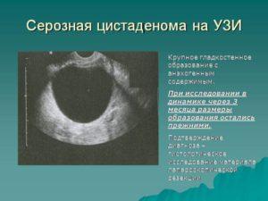 Киста яичника серозная лечение