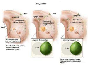 Онкология молочной железы 3 стадия сроки жизни