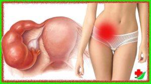 Народные средства от воспаления придатков и яичников