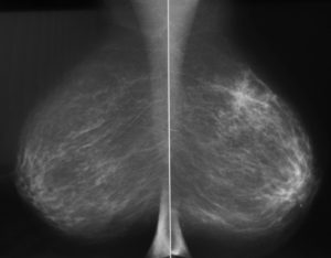 Маммология молочных желез