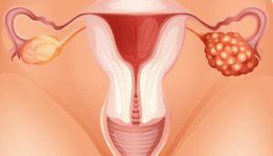 Хроническое воспаление яичников